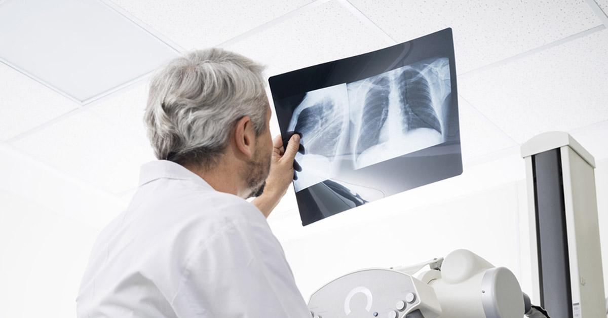 Mesothelioma Lung Cancer Compensation