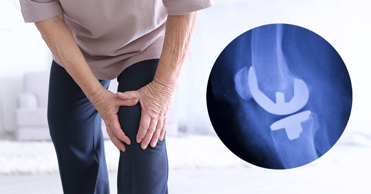 Aesculap Knee Replacement Lawsuits - Consumer Safety Watch