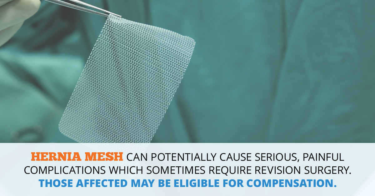 Hernia Mesh Lawsuit // Consumer Safety Watch