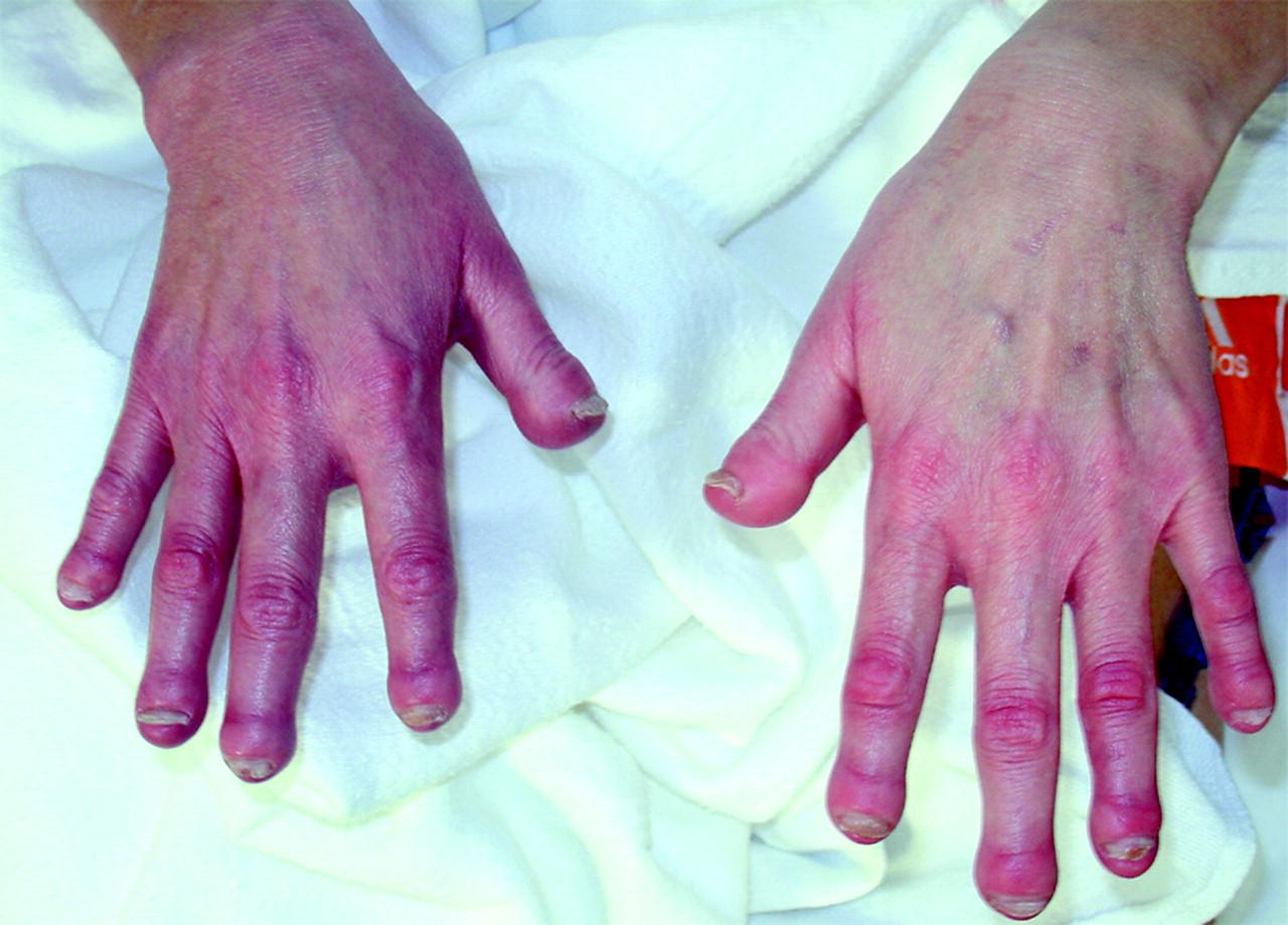 Gadolinium Toxicity Compensation