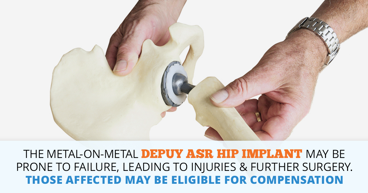 DePuy ASR Hip Implant Lawsuits, Settlements, Compensation