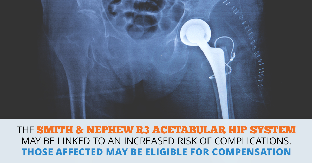Smith Amp Nephew R3 Acetabular Hip System Lawsuit Consumer