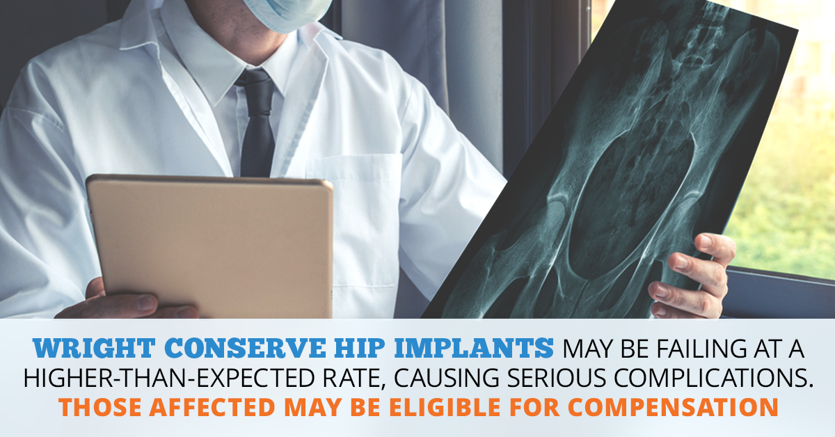 Wright Conserve Hip Lawsuit | Consumer Safety Watch